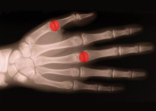ばね指の写真